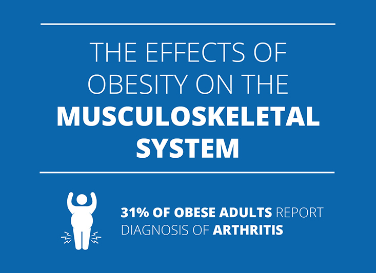 The effects of obesity on the musculoskeletal system